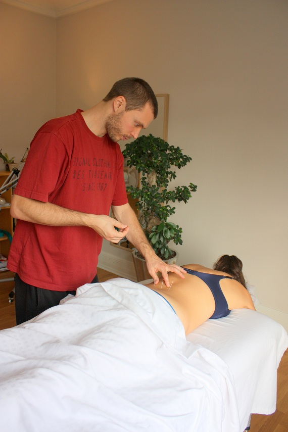 Kasper Andersen akupunktur acupuncture